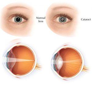 Eye care centre near me,