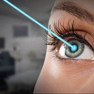 Best eye specialist in Chandigarh,